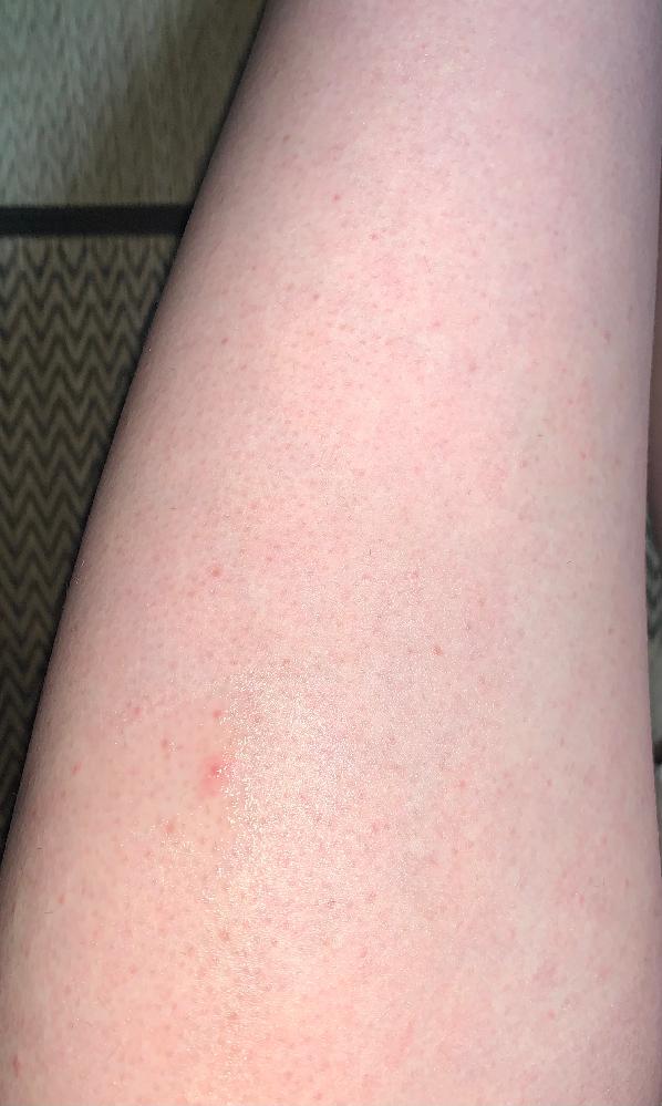 長年太もものポツポツに悩んでいます。 これは毛嚢炎でしょうか?また皮膚科に行く以外で予防法・対処法を教えていただきたいです。