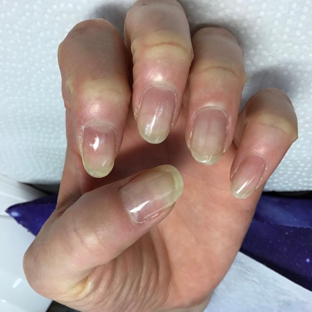 爪かみでジェルネイル施術中にベースを塗った状態です。これをキープしたいなら、永遠にジェルネイルを続けるしかないでしょうか。 ネイルサロンに行く前は、この7割くらいしか縮んで爪がなかったです。
