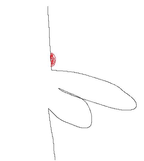 陰茎の付け根に固いものができています 1cmぐらいの大きさで蚊に刺された程度に腫れています 触ると少し痛みます これが何かわかる方、回答をお願いします。 添付してる画像はだいたいどの辺りにある...