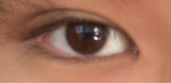 この目は蒙古襞かなり張ってますか?また改善方法はありますか?