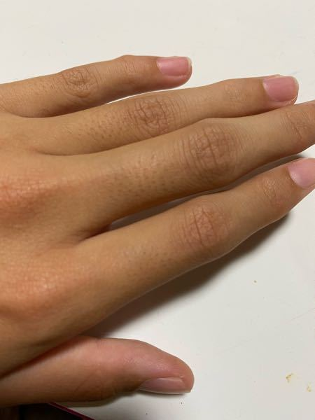 指の毛はどうやって処理するんですか?毛穴が目立って嫌です