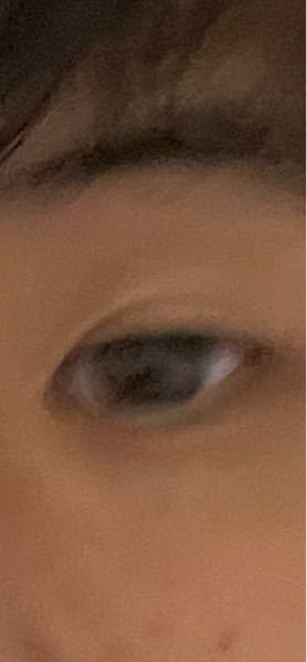この目の小ささは異常です、整形したいんですけど、骨格が小さすぎるので、無理でしょか?