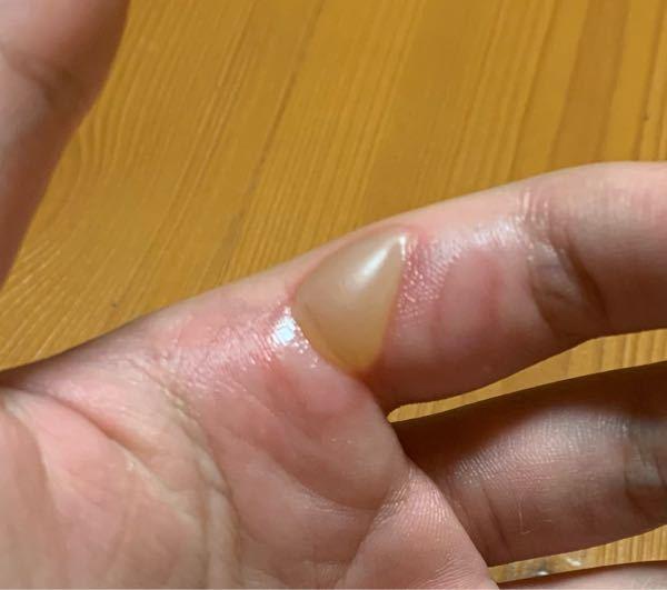 緊急です! 昨日家庭科の授業でフライパンを触ってしまい、手を火傷しました。 どう治療すれば良いでしょうか? また、どれくらいで治りますか? 回答お願いします。