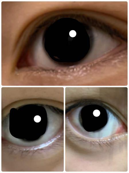 これは眼瞼下垂ですか? 元々ほぼ一重で、中学1年生の時に半月か1ヶ月ほど毎日では無いですが、ナイトアイボーテを使っていました。 めんどくさくなってやめた後歳を重ねるごとに二重の線がくっきりしてい...
