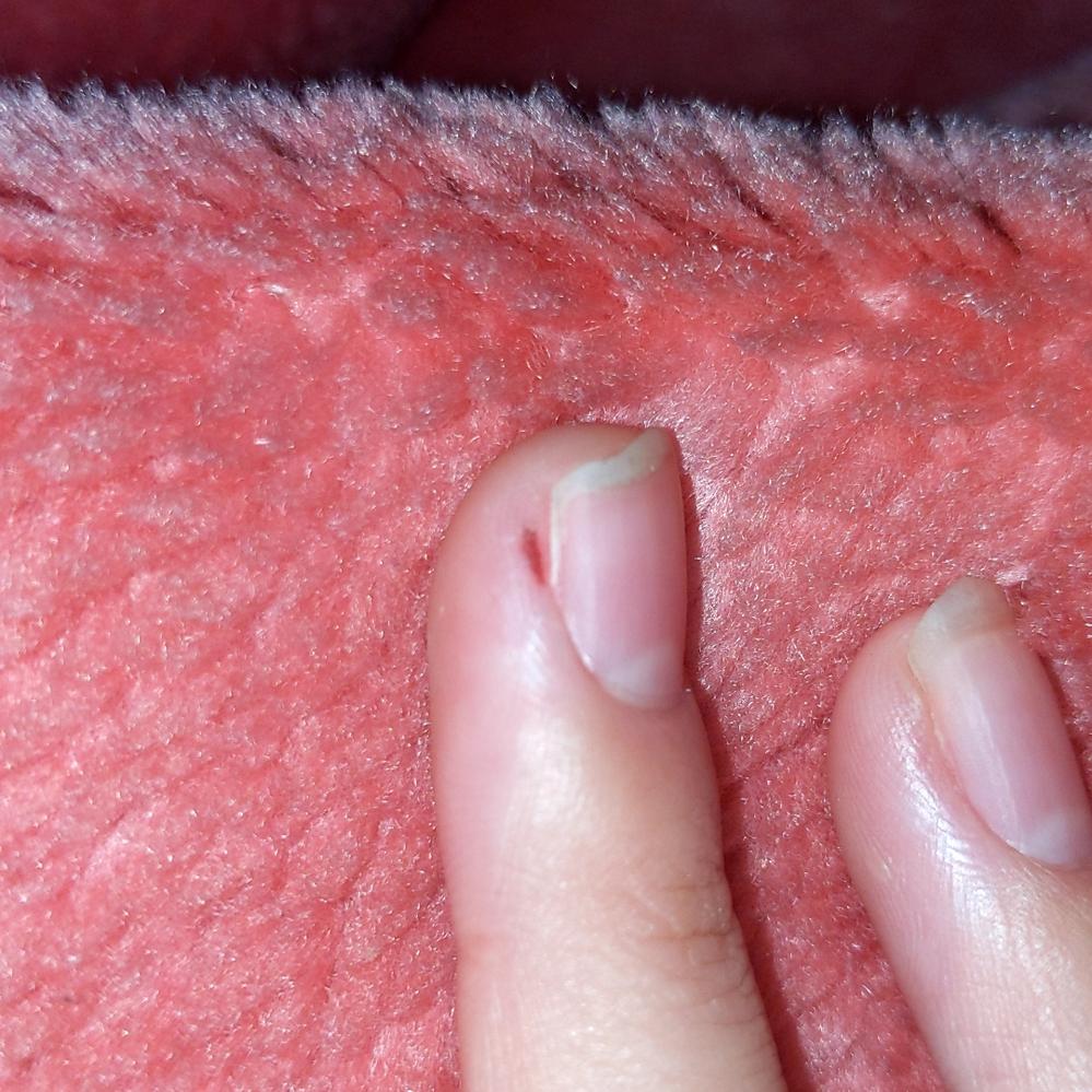 皮膚科の方にお伺いさせて頂きますが、写真の中指の隣にある血の塊みたいなものは何でしょうか?気がついたらあり痛みはありません。