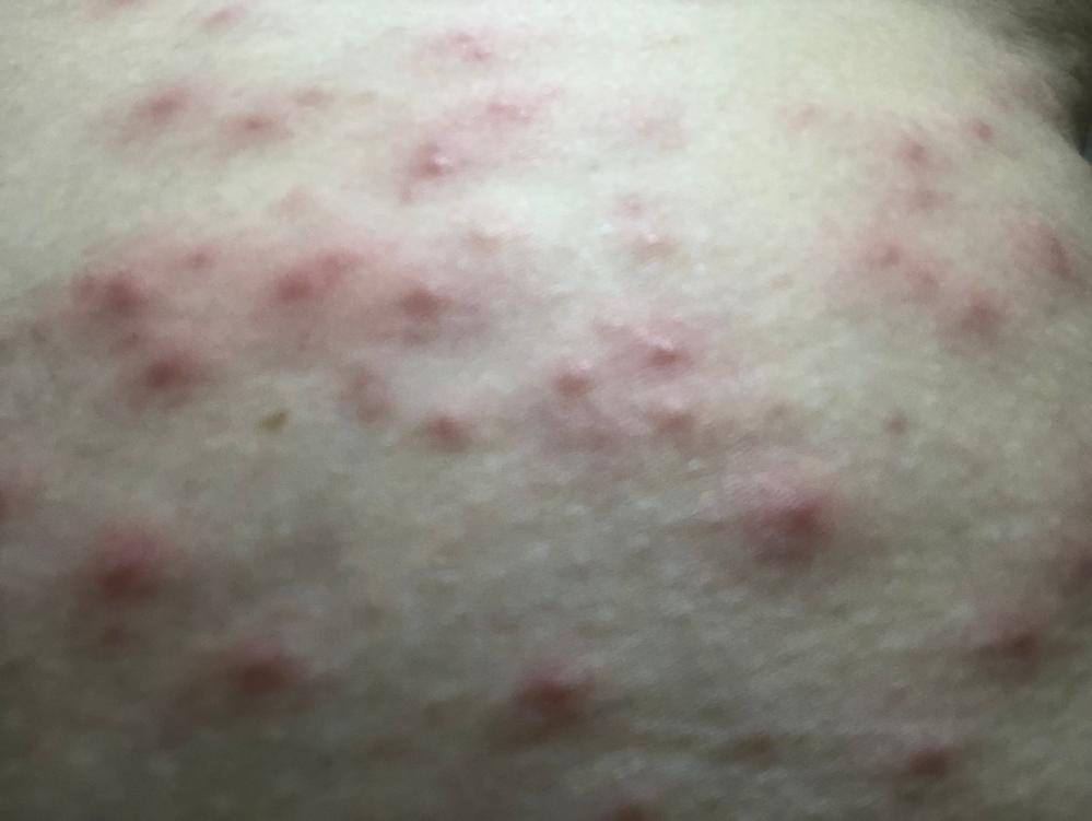 この発疹なんだと思いますか? 2日前から赤い発疹が出てきました。主に胴回りのお腹や背中に最初出来て、日に日に首から足首くらいまで転々と広がってきています。かゆみ、痛みはありません。 水疱瘡の検...