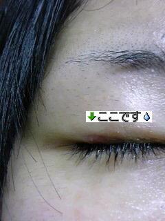 眼 軟膏 プレドニン