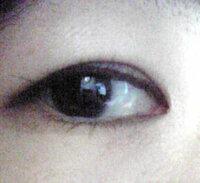 垂れる まぶた まぶたのたるみ?眼瞼下垂とは……原因・症状・治療法 [目の病気]