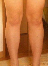 膝の関節について。 私はいわゆる下半身デブ(洋ナシ型)のため脚痩せのために試行錯誤中のものです。 そこで質問なのですが、膝の関節のみが太いというのはありえるのでしょうか? 手首や足首などは普通の太さ...