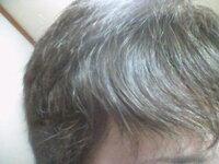 この前髪のうねり・・  なおりません   もう半年くらいです   誰かなおし方教えてください