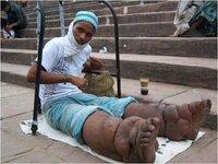 「チェルノブイリ 象の足」と検索したら、このような画像が何個かありましたが、これは被爆した人の画像ですか?
