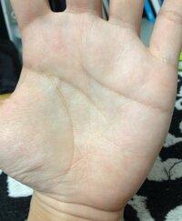 手相についてご質問です。 手相について質問です。  初投稿なのでお手柔らかにお願いします。  私の手相は鎖状の線が多く、気になってます。 色々な手相のサイトを見てると虚弱体質などと 書かれて鎖状に関...