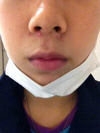 この鼻下のニキビ 2週間治らないんです。  潰すわけには いかないし 誰か 早く治す為の方法  提供してください。(T ^ T)  カテゴリ違いと思いますが、親切にお願いします。