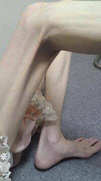 これは痩せすぎですか?脚がガリガリに見える直接の原因は何だと思いますか?  1.とにかく脚全体が細く見える 2.太ももとふくらはぎが同じ太さ 3.ひざ裏が異様に筋ばって窪みが深すぎる 4. 足首が骨ばって細...