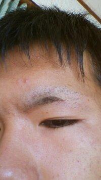 このように大胆に眉毛を失敗してしまいました。  一日でも早く伸びて欲しいです!! 何かいい方法がある方教えて下さい。