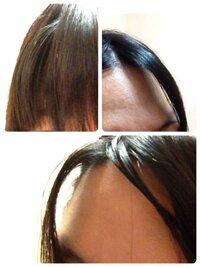 前髪の一部分(自分から見て右端)がぽこっと浮いています。 癖なんですかね?水で濡らして綺麗にドライヤーしても根元がぽこっとしています。 左にはないです。 癖にしてはなかなか頑固で困っています。 画像は左...