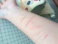これはリスカと呼べますか? たったこれだけの猫の引っかき傷程度の傷でもリスカと呼んでいいのですか?