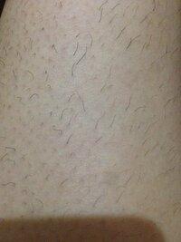 脱毛についてです。 19歳女です。 ムダ毛がひどすぎて脱毛したいです。脱毛サロンは高いし効果がない場合もあるとか予約が取れないとか聞きますし、美容皮膚科はとにかく高い…。  そこでケノンを購入しようかと思っているのですが、ここまで剛毛でも果たして効くのでしょうか…。笑 足の膝下の写真で1週間放置した状態です。  夜剃っても朝にはすでにチクチク生えてきてるし、そもそも剃った直後も埋没毛でザラザ...