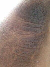 脇が異常に黒いです。(画像あり)かなり気持ち悪いというか象のような肌です。不快に思う方は見ないほうがいいです。 ↓      これは皮膚科に行けば治りますか?