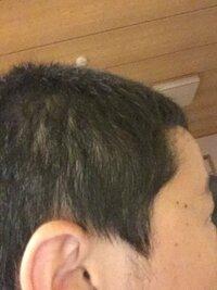 中2男ですが、最近横から見ると薄い気がします。髪の切り方がそう見えるだけでしょうか。髪型は坊主に近いソフモヒです。 気のせいだったらいいのですが... はげてたら言ってください