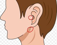 耳たぶ 付け根 しこり 耳たぶのしこりが痛い!原因や病気の可能性を知っておこう!