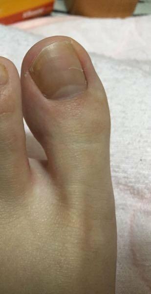 痛い 親指 足 の