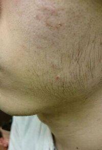20歳の男性です。顔の頬の毛のことで悩んでいます。画像のような長く少し太めの毛が生えており、半年に1度くらい電動髭剃りで剃ってしまっていました。 そしたらそれよりも太い毛が生え始めたので毛抜きで抜いて...