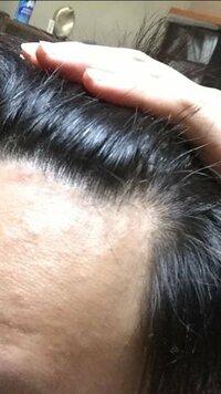 前髪 生え際 はげ 【写真付き】U字ハゲ・前頭部のハゲを自然に隠す髪型14選!男の薄毛を...