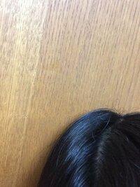 頭のてっぺんの髪がかなり浮くのですが、どうしたらいいですか?