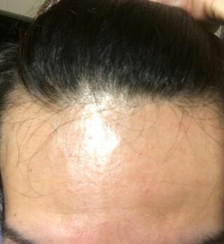 生え際,ハゲてき,ハーグ療法,大宮中央クリニック,オデコ,てっぺん,男性型薄毛