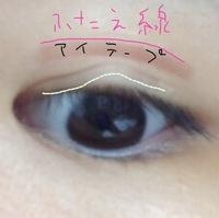 小さい頃ものもらいを眼科でつぶしてもらってから右目に変な線がついてしまい、二重だったのが奥二重になってしまいました。 今はアイプチやアイテープで二重にしていますが、整形手術をしない ともう自然な2重...