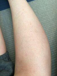 足 毛穴 ブツブツ 毛孔性苔癬の原因・症状を解説 ロート製薬: