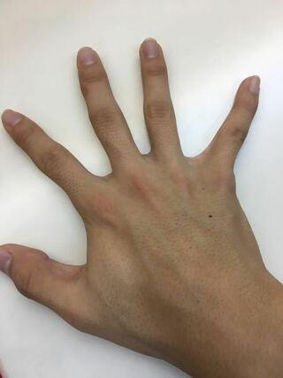 の 方法 なくす 手 を 毛穴