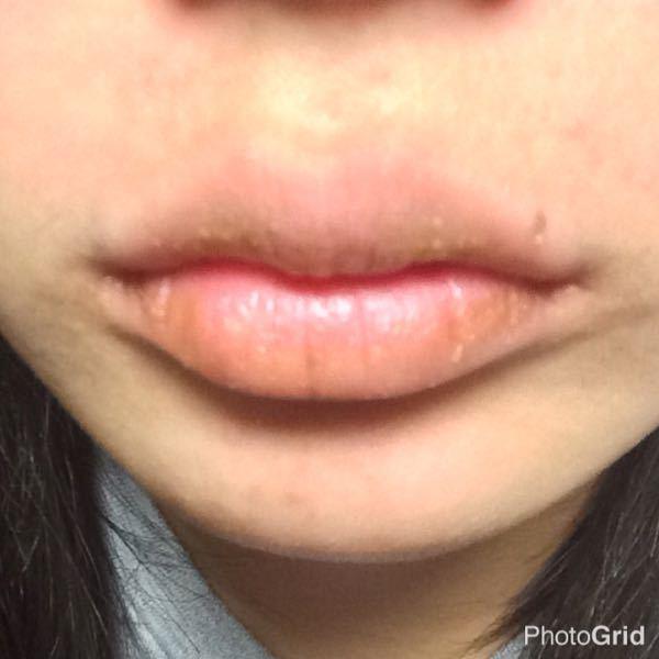 ふち が の かゆい 唇