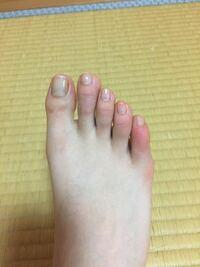 小指 付け根 の 足 痛い の