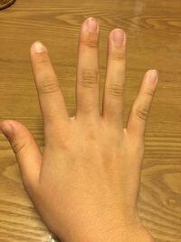 中学生女子です。私は今、手について悩んでいます。自分の手がコンプレックスです。指の毛や毛穴(?)のようなもの、関節のシワや黒ずみなどです。(写真あり)おっさんみたいな手で嫌です。なにかいいケア方法とかあ...