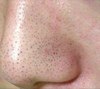 この写真くらいのいちご鼻だったけど治ったって方いますか?