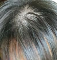 顔の正面からみて、この様に髪の毛が薄くなってきて悩んでおります。AGAの薬プロペシアを2年飲み続けても効果ありません。どうすれば発毛しますか?もうお金もありません。あと、髪型はハゲをいつも隠すように少し長 めにしてるのですが、僕のように正面からみてハゲに見えるので、目立たない髪型を教えてください。
