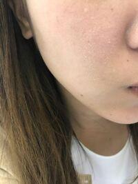 肌がやばいです。 乾燥しすぎてカサカサで ファンデーションがのりません。  何日くらいで治ると思いますか?