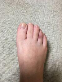 足 の 小指 ぶつけ た 内出血