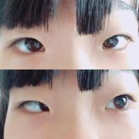 写真をとるとすごく寄り目になります。また、下の写真のように目だけ横を向くと片方の目が黒目がほぼ見えなくなってしまいます(写真に限らず) 治す方法などがあったら教えて欲しいです。瞼の形 ?がおかしいのはアイテープしてるからです