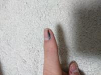 人差し指に黒い線のようなものが二三年前に出てきました 根本まで黒いのがあります これってメラノーマですかね? ちなみに15歳 男子高校生です