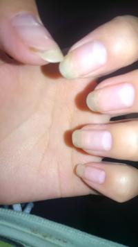 自爪の汚れについて。 自爪の汚れなのですが どうしたら綺麗になりますか?  セルフジェルネイルをしてるので 爪は切りたくないです。 初めてネイルをする前からなので 原因はわかりません。