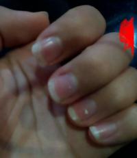 最近まで、爪を噛んでしまうくせですごく深爪でした。 そのせいでピンクの部分が少なくなって、元々男爪だったのがますます男爪に見えます。不潔な印象なので本気で綺麗にしたいです。 やっぱり白い部分やすった...