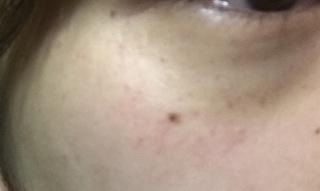 斑点 赤い の 目 周り