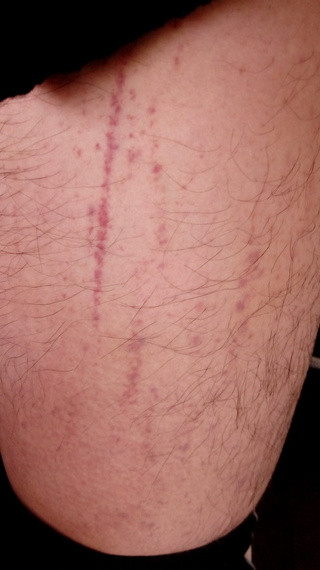 斑点,皮膚科,太もも,紫色,内出血,ズボン
