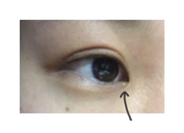 目頭に白い粒のようなできもの(?)があります なんていう名前かわかる方教えてください(;;) 例え
