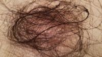 セミロングヘアーですが、一回のシャンプーでこれだけ毛が抜けるのは多いですか?