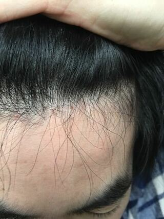 はげ 前髪 生え際