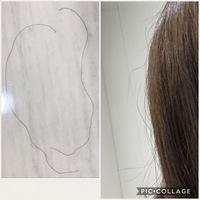 原因 みたい 髪の毛 陰毛